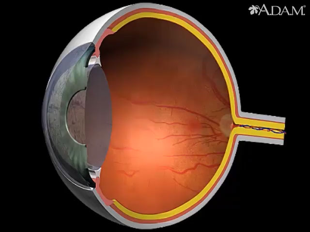<div class=media-desc><strong>Diabetes - retinal conditions</strong><p>Diabetes may affect the retina by causing the formation of whitish patches called exudates. Other indications may include tiny enlargements of the blood vessels, resulting in microaneurysms and hemorrhages. </p></div>