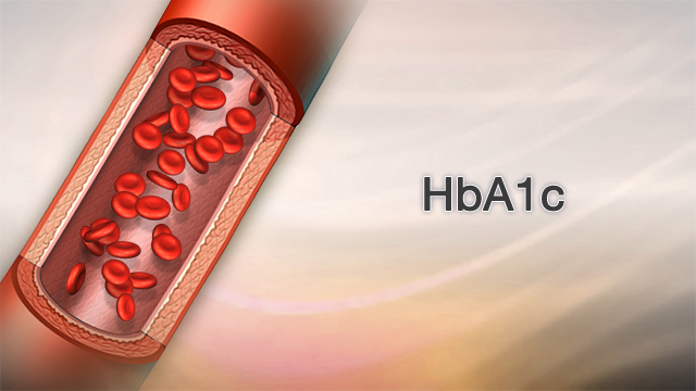 <div class=media-desc><strong>HbA1c</strong><p>If you have diabetes, it's important to keep tight control of your blood sugar. The Hemoglobin A1c test, or HbA1C test, is one way to find out if you are in control. Hemoglobin is an important part of the red blood cell. Red blood cells live about three months. During the life of a red blood cell, sugar molecules, also floating around in your blood, tend to want to stick to the hemoglobin of your red blood cells. Identifying these sugar molecules allows us to get an approximate three-month average of how high persons blood sugars have been. The HbA1c test helps us diagnose a patient suspected of having diabetes and monitors the blood sugar of a diabetic patient. Now, how do we screen for diabetes? If your doctor suspects you have diabetes, your physician will order this simple blood test. A normal HbA1c level is less than 6.0%, which is a three month blood sugar average of around 126 milligrams per deciliter, written like this in your lab results. (126 mg/dl). A HgbA1c level of 5.7 to 6.4% means you are pre-diabetic or borderline-diabetic. If your HgbA1C is 6.5% or higher, you are considered to be a diabetic. That correlates roughly to a 3-month blood sugar average of 140. So, if you are a diabetic, what level should your HbA1c be? Through a combination of a good diabetic diet that controls for carbohydrates, proteins, fats and calories, the American Diabetes Association currently recommends a HbA1C goal of less than 7%. I should also point out that the American Association of Clinical Endocrinologists recommends an even stricter control of diabetes - with a recommended goal of less than 6.5%. What we do know is diabetes causes permanent and irreversible damage to the nerves, blood vessels and body organs, like your eyes, kidneys, heart and also your feet. So, it's critical to get and keep your diabetes under good control to avoid serious long-term health problems. People often ask -- How often should a hemoglobin A1C t