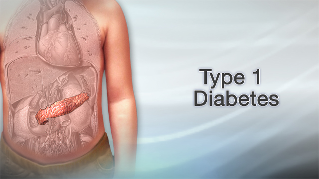 <div class=media-desc><strong>Type 1 diabetes</strong><p>Your body is a fuel-burning machine, and the main fuel it burns is sugar, also known as glucose. In people who have diabetes, though, the body doesn't effectively store and use sugar for energy. As a result, sugar builds up in the blood, where it can lead to serious problems like blindness and nerve damage. Let's talk about a kind of diabetes known as type 1 diabetes. Unlike type 2 diabetes, which is often caused by obesity, type 1 diabetes is an autoimmune disease. That means your immune system, which normally protects your body, turns against you. In this case, the immune system attacks the cells in the pancreas that produce insulin. Insulin is a hormone that moves sugar into cells. There it's stored until your body needs it for energy. Without enough insulin, sugar can't move into your cells, so it builds up in your bloodstream. How do you know that you have Type 1 diabetes? The first signs are usually that you feel very thirsty or tired. You may lose weight without having planned to, or feel numbness or tingling in your hands or feet. If your blood sugar has already gotten very high, your body can't use sugar for energy, so it uses fat instead. This leads to a condition called diabetic ketoacidosis. Your breath will smell fruity, like you've just eaten a fruit salad. Your breathing will get faster, and you may feel sick to your stomach. Your doctor will test your blood sugar level to find out if you have type 1 diabetes. The test may be done when you haven't eaten anything, this is called a fasting blood glucose test. When you have type 1 diabetes, you need to take insulin to replace what your body isn't making. Insulin is only available as an injection, so you'll have to learn how to give yourself a shot each day or wear a pump that delivers insulin to your body continuously. Managing diabetes also means watching your diet so you don't get too much or too little sugar at once. You also need to check your 
