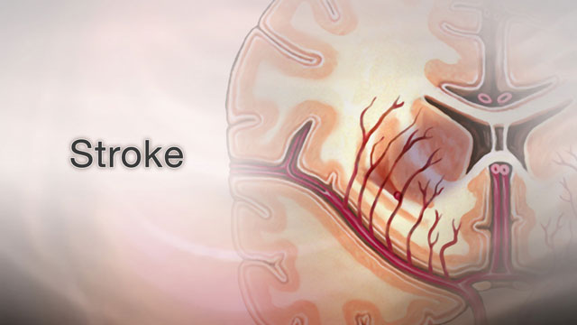 <div class=media-desc><strong>Stroke</strong><p>When blood flow to an area of your brain stops, it's serious. It's called a stroke, and will often cause permanent, debilitating damage to your brain and change your life. Let's talk about strokes. If blood flow to your brain is stopped for longer than a few seconds, your brain can't get blood and oxygen. Brain cells die, causing permanent damage. There are two types, ischemic stroke and hemorrhagic stroke. Ischemic stroke happens when a blood clot forms in a very small artery, or when a blood clot breaks off from another artery and lodges in your brain. Hemorrhagic strokes can happen when a blood vessel in your brain becomes weak and bursts open. High blood pressure is the number one risk factor for strokes. People with atrial fibrillation, when your heart rhythm is fast and irregular, diabetes, a family history of stroke, and high cholesterol are most at risk. You are also at risk for stroke if you are older than age 55. Other risk factors include being overweight, drinking too much alcohol, eating too much salt, and smoking. Symptoms of a stroke usually develop suddenly, without warning. You may have a severe headache that starts suddenly, especially when you are lying flat, often when you awake from sleep. Your alertness may suddenly change. You may notice changes in your hearing, your sense of taste, and your sense of touch. You may feel clumsy or confused or have trouble swallowing or writing. So, how are strokes treated? A stroke is a medical emergency. Immediate treatment might save your life and reduce disability. Call your local emergency number -- or have someone call for you -- at the first sign of a stroke. Most of the time, someone having a stroke should be in the hospital within three hours after symptoms first begin. If a doctor suspects you've had a stroke, the doctor will check for problems with your vision, movement, feeling, reflexes, and your ability to understand and speak. You may have several te