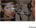 Slit-lamp exam