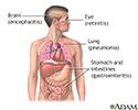 CMV (cytomegalovirus)