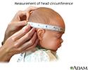 Head circumference
