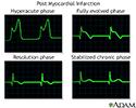 Post myocardial infarction ECG wave tracings