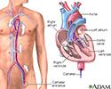 Left heart catheterization
