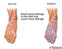Diabetic blood circulation in foot