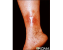 Dermatitis, stasis on the leg
