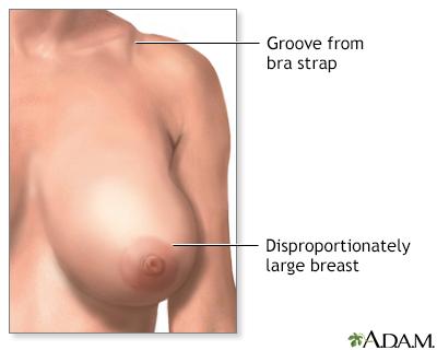Breast Reduction Mammoplasty Series