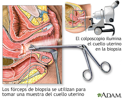 virus papiloma biopsia)