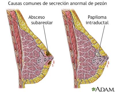 Que es ectasia ductal y papiloma intraductal. Ce se întâmplă dacă au existat scurgeri din sani?
