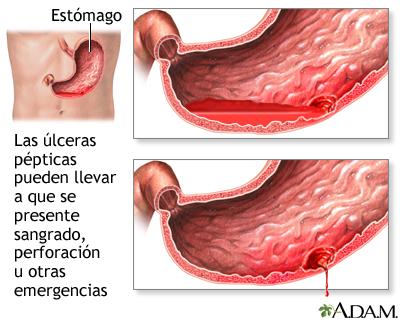 dureri articulare de ulcer stomacal boli legate de vârstă