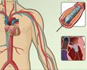 Cardiac catheterization - angioplasty and other procedures